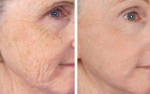 استفاده از لیزر برای زیبایی پوست