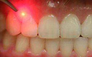 استفاده از لیزر در دندان پزشکی