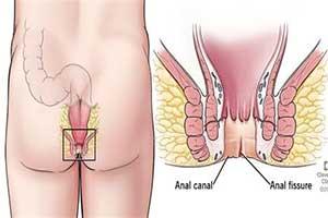 درمان فیستول مقعدی در زنان