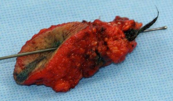 عمل جراحی کیست مویی