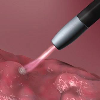 درمان پولیپ رکتوم بوسیله گاز آرگون پلاسما