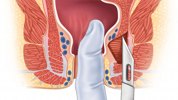 درمان جراحی زخم مقعدی